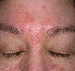 Seborhoická dermatitida